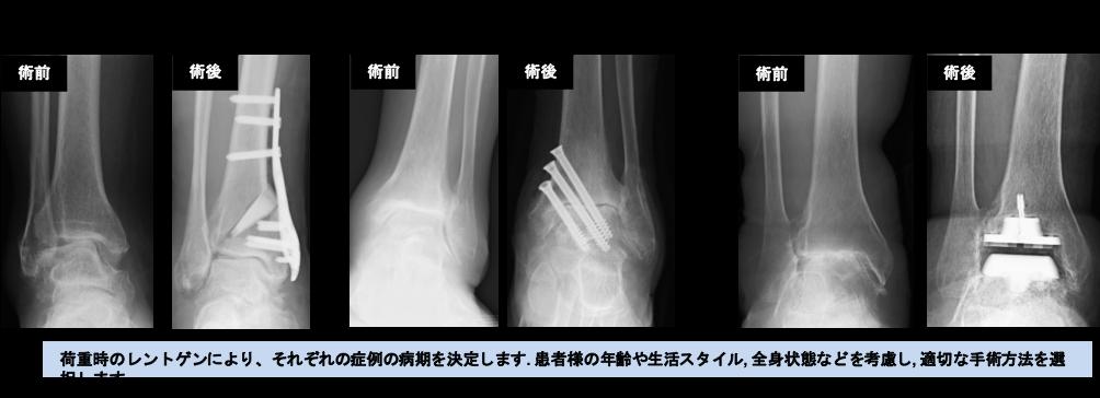 関節 脱臼 骨折 リスフラン